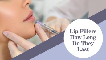 Lip-Fillers-How-Long-Do-They-Last
